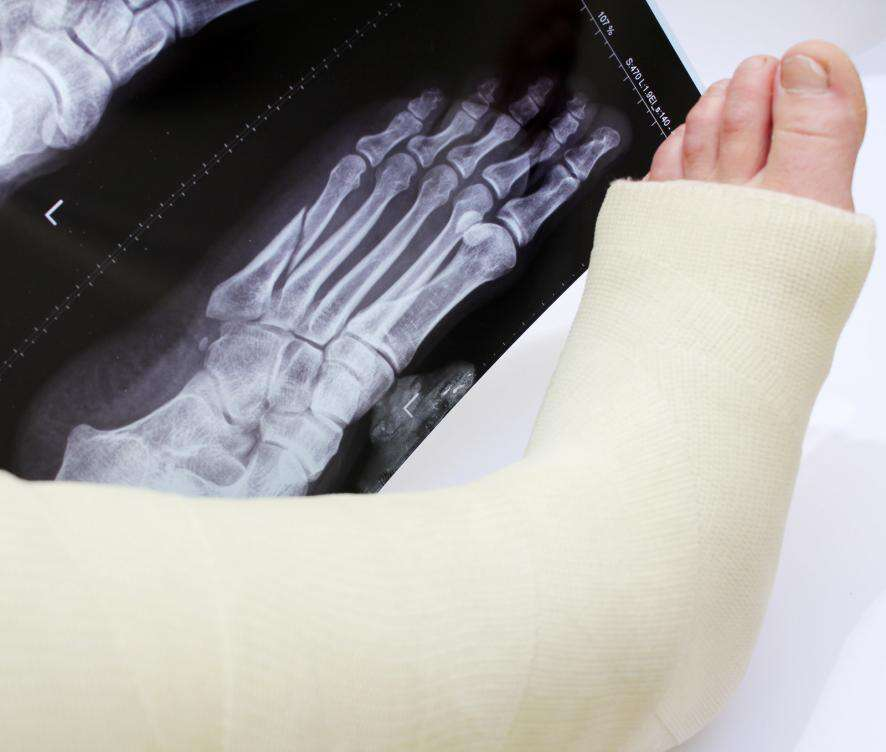 Broken Foot in a Cast